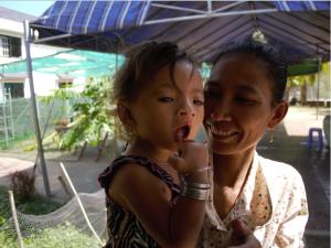 Cleft Palat Baby Choice Cambodia